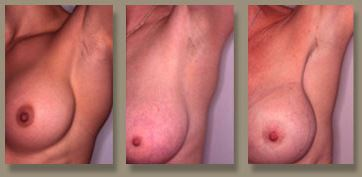 Transaxillary breast augmentation photo